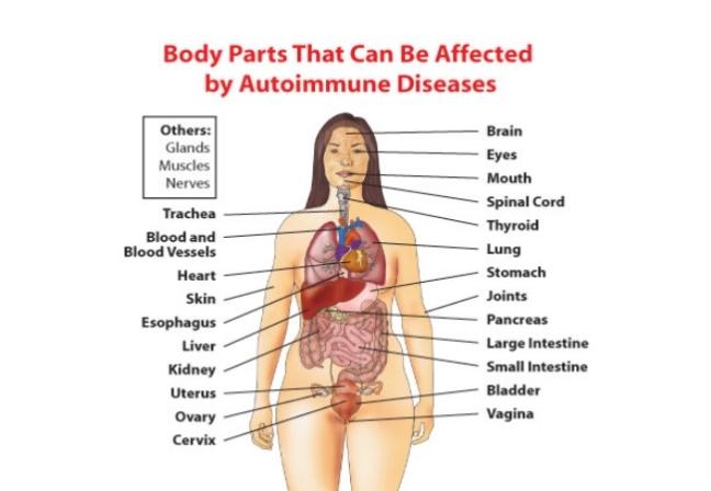 Autoimmune-Disorders